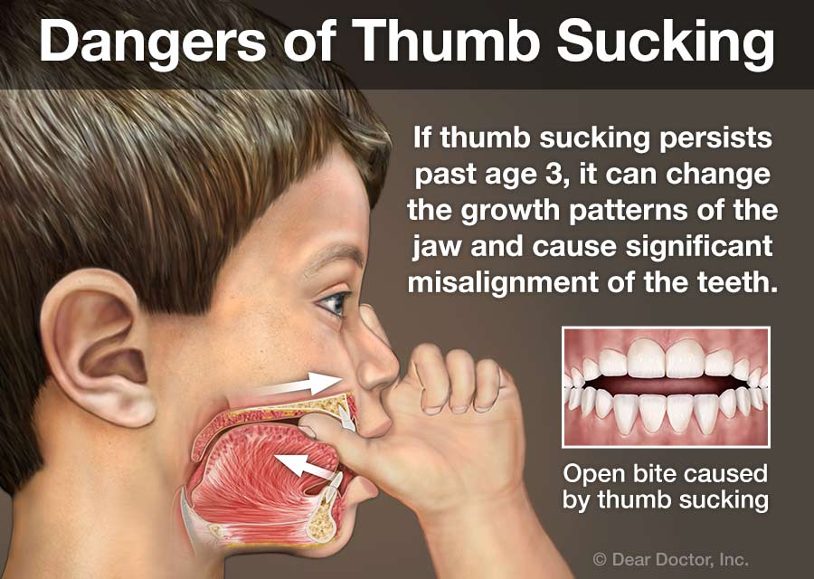 dangers-of-thumb-sucking